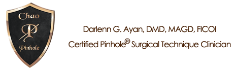 Dr. Ayan is a certified Chao Pinhole Surgical Technique Clinician