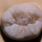 image of smile before Dr. Ayan's treatment