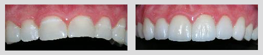 example of dental work by Dr. Ayan